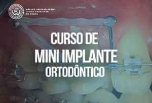 Curso MIni Implante Ortodôntico Curitiba