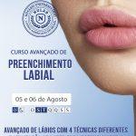 Preenchimento Labial Curitiba Harmonização Facial