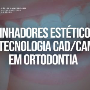 Alinhadores estéticos e Tecnologia CAD/CAM em Ortodontia